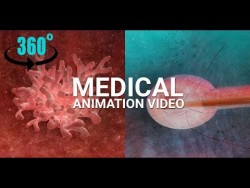 360° Medical VR Animation (3D Anaglyph Video) – Bladder Cancer Tumor Treatment – YouTube